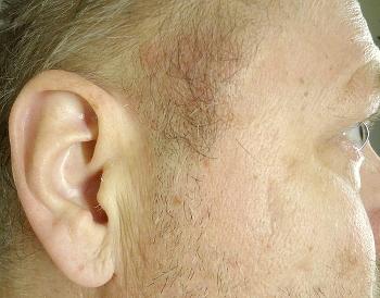 ont framför örat