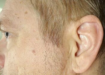 psoriasis i örat