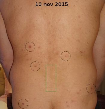 Hudsvamp på ryggen