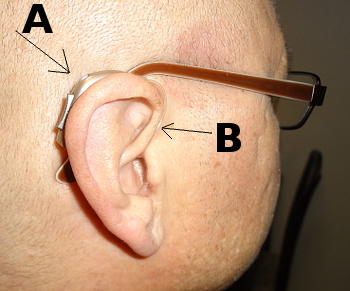 eksem hörselgång