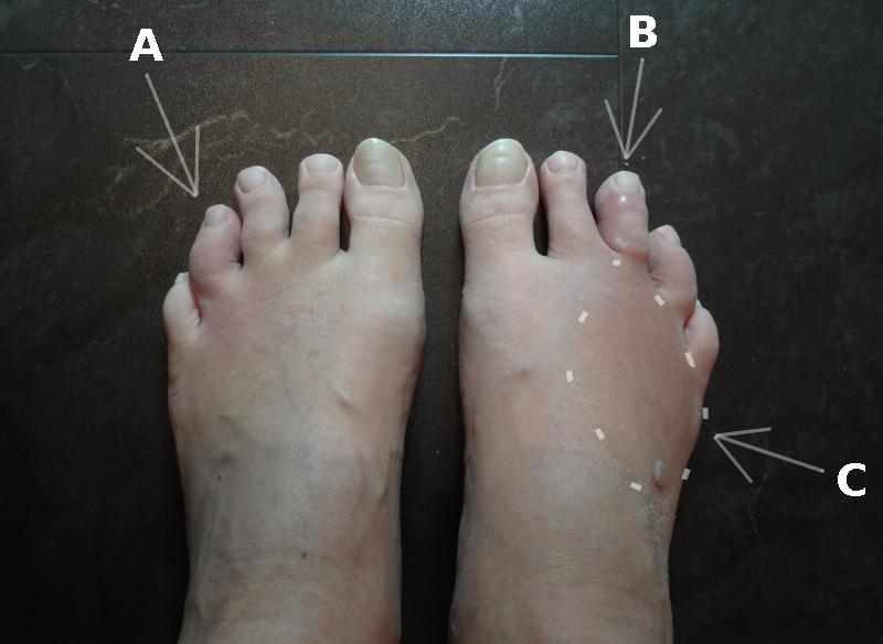 fötter och tår